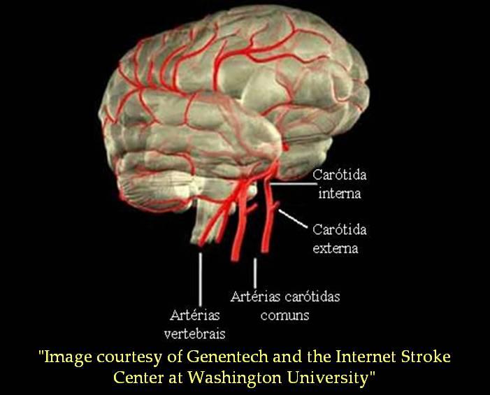 acúmulo de ferro no cérebro